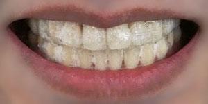 Crest 3D WHITEを貼りつけた歯