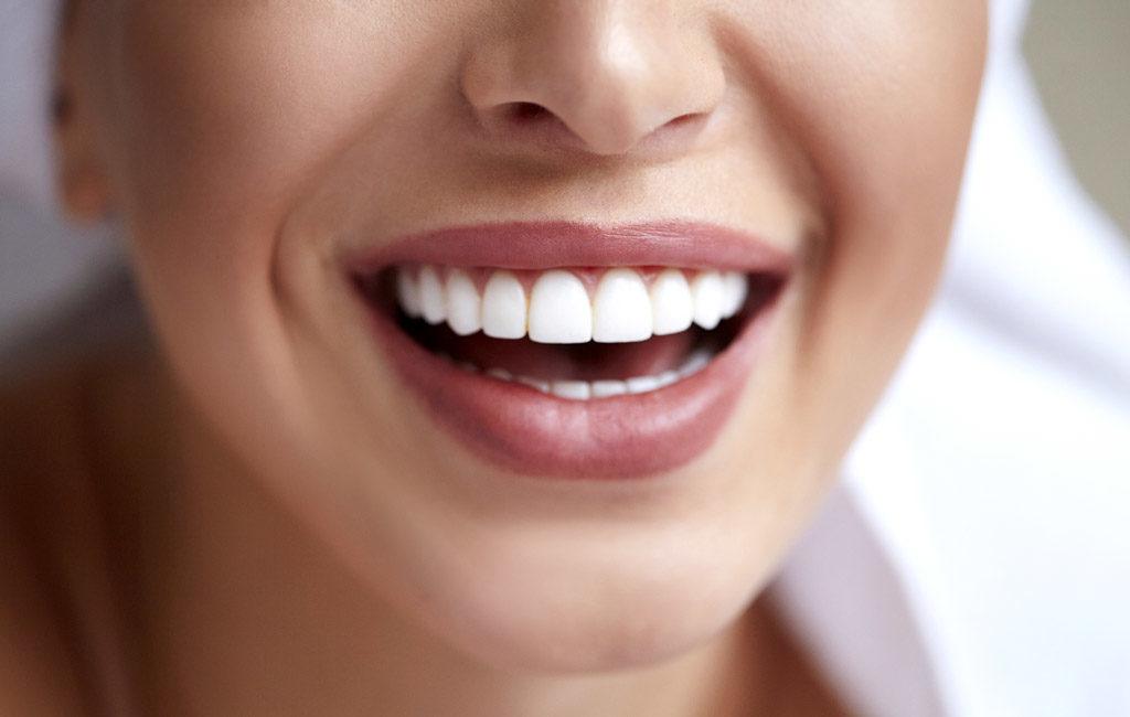 歯並びのいい女性