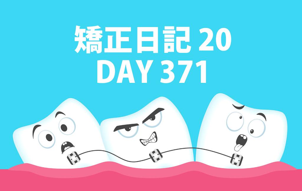 矯正日記20