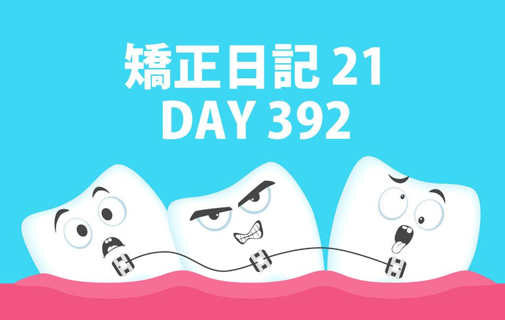 矯正日記21